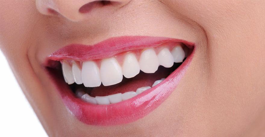 بلیچینگ یا همان سفیدسازی دندان ها