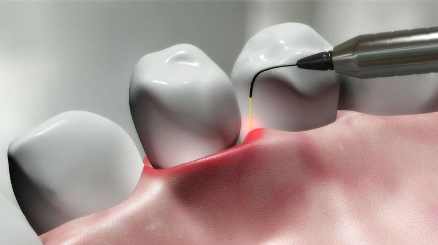 فواید استفاده از لیزر در درمان های دندانی بیماران دیابتی